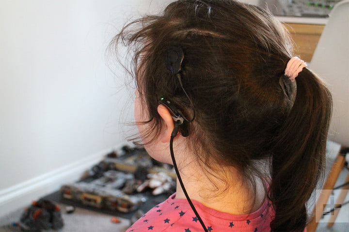 girl with cochlear implants